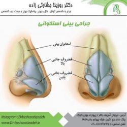 جراحی-بینی-استخوانی-300x300