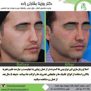 تفاوت جراحی بینی مردان