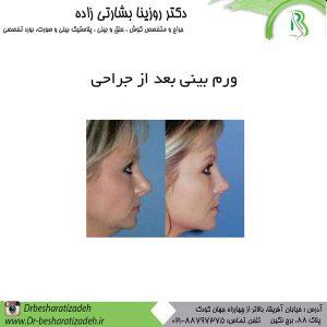 ورم بینی بعد از جراحی