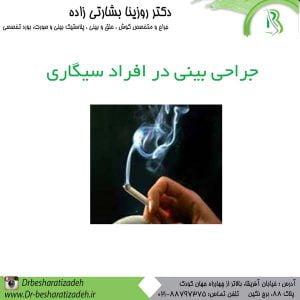 جراحی-بینی-در-افراد-سیگاری-