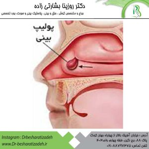 درمان-پولیپ-بینی