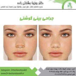 جراحی-بینی-گوشتی-300x300