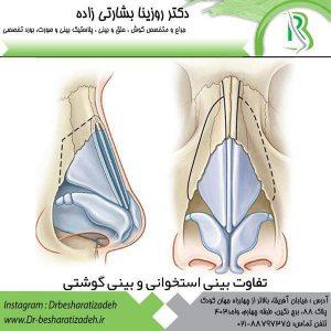 تفاوت-بینی-گوشتی-و-استخوانی-300x300