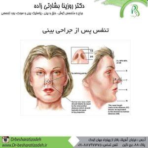 تنفس-پس-از-جراحی-بینی