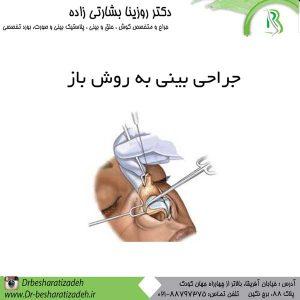جراحی بینی به روش باز حدوداً در 15 سال گذشته از مهم ترین مسائل برای جراح بینی ، این است که کدام روش مناسب تر است و نتیجه مطلوب تری را به همراه دارد...