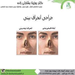 جراحی-انحراف-بینی