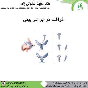 گرافت-در-جراحی-بینی-دکتر-بشارتی-300x300