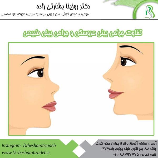 تفاوت جراحی بینی عروسکی و جراحی بینی طبیعی