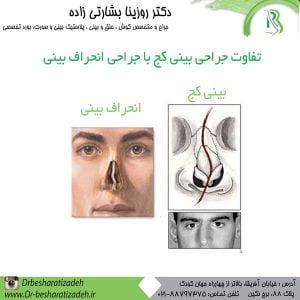 تفاوت جراحی بینی کج با جراحی انحراف بینی