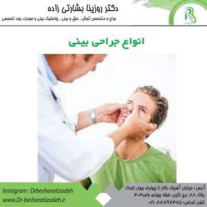 انواع-جراحی-بینی