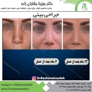 جراح بینی تهران 3