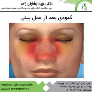 کبودی بعد از عمل بینی