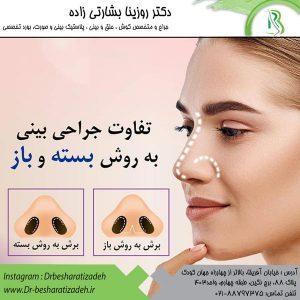تفاوت جراحی بینی به روش بسته و باز
