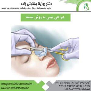 جراحی بینی به روش بسته