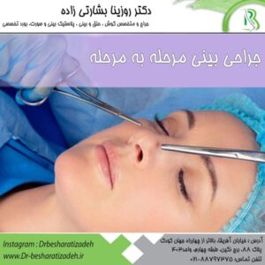جراحی بینی مرحله به مرحله