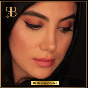 جراحی بینی - دکتر بشارتی زاده