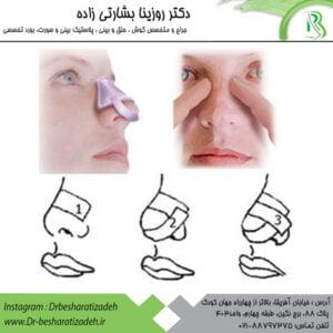 چسب توصیه شده پس از عمل بینی